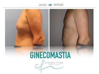 Ginecomastia - Dra. Claudia Frigo