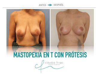 Mastopexia - 742444