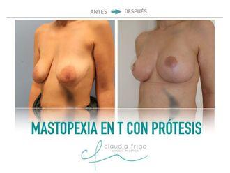 Mastopexia - 742445