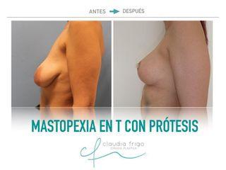 Mastopexia - Dra. Claudia Frigo