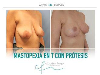 Mastopexia - 742448