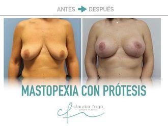 Mastopexia - 775573
