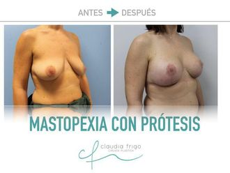 Mastopexia - 775574