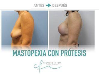 Mastopexia - 775575