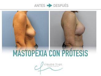Mastopexia - 775576