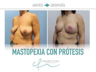 Mastopexia - 775577