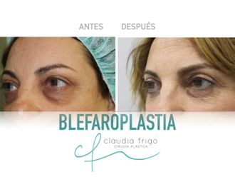 Blefaroplastia - 786770