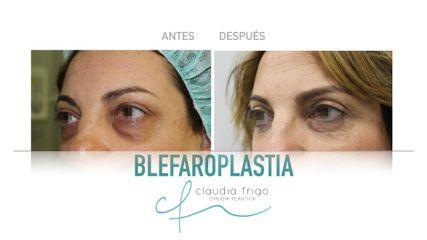 Blefaroplastia - Dra. Claudia Frigo