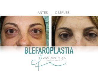 Blefaroplastia - 786771