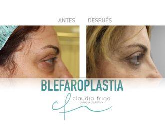 Blefaroplastia - 786772