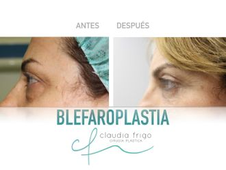 Blefaroplastia - 786773