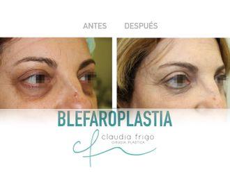 Blefaroplastia - 786774