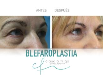 Blefaroplastia - 787017