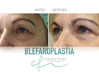 Blefaroplastia - 787018