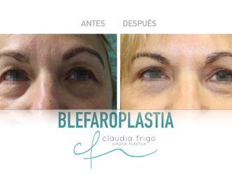 Blefaroplastia - 787019