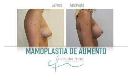 Aumento de pecho - Dra. Claudia Frigo