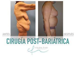 Lipoescultura - Dra. Claudia Frigo