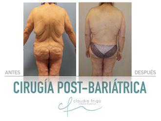 Lipoescultura-788851
