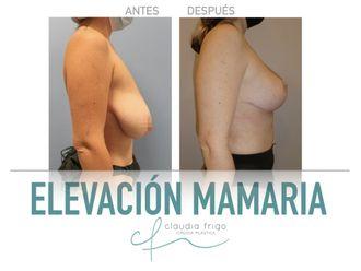 Reducción senos-789777