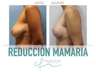 Reducción de senos - Dra. Claudia Frigo