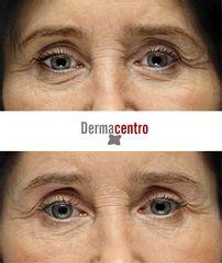 Antes y después Ojeras mujer
