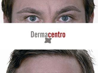 Eliminación arrugas-329748