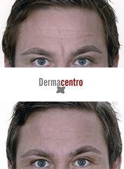 Antes y después Arrugas frente