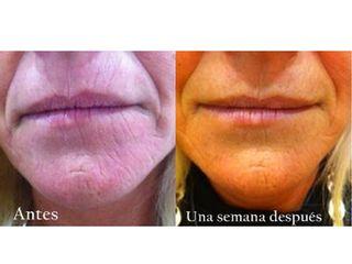 Antes y después Tratamiento biomoleculare