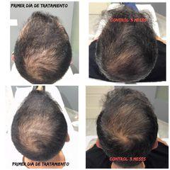 Trasplantes capilares - Dr. Josep Antoni Fortuny Cid