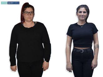 POSE Reducción de estómago-643047