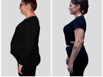 POSE Reducción de estómago-644607