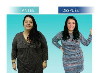 Tratamiento obesidad - 644608