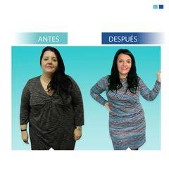 Antes y Después Obesidad