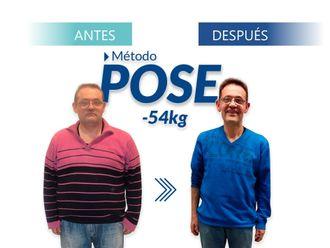 POSE Reducción de estómago - 644614