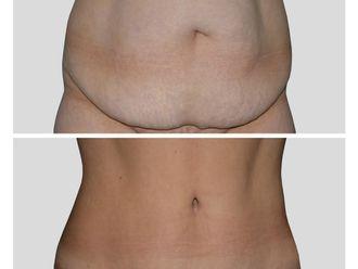 Abdominoplastia - 644837