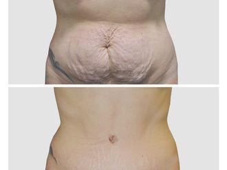 Abdominoplastia - 648142
