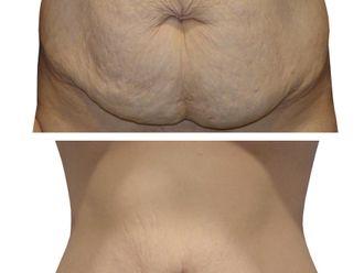 Abdominoplastia - 648146