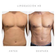 Liposucción ultrasonica