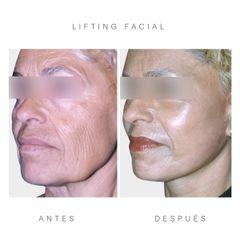 Antes y después lifting facial