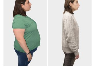 Tratamiento obesidad-693818