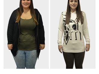 Tratamiento obesidad-693819