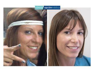 Medicina estética-700958