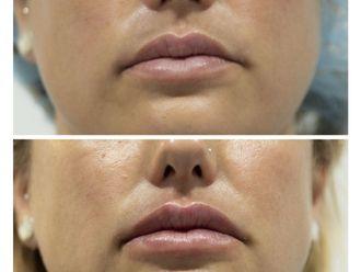 Aumento labios-737163