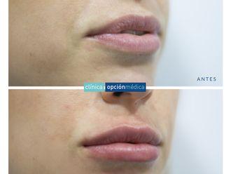 Aumento labios-737164