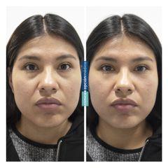 Eliminación de ojeras - Clínica Opción Médica