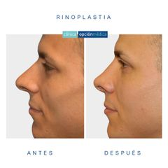 Rinoplastia - Clínica Opción Médica