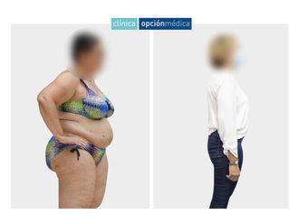 Tratamiento obesidad-737188