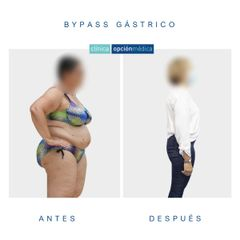 Bypass gástrico - Clínica Opción Médica