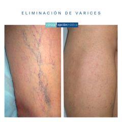 Tratamiento varices - Clínica Opción Médica