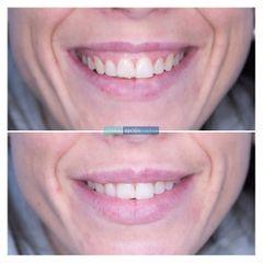Sonrisa gingival - Clínica Opción Médica